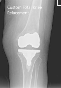 Postoperative X-ray showing AP and lateral views of the right and the left knee joint