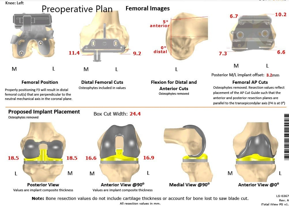 Complete Orthopedics patient specific surgical plan for a ustom Left Total Knee Replacement in a 66-year-old male - scan 2
