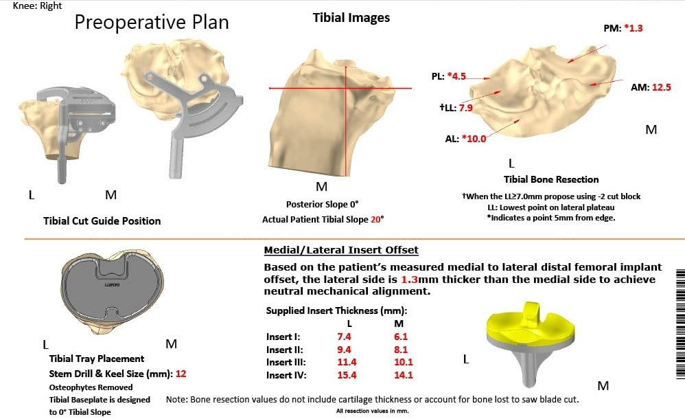 Complete Orthopedics patient specific surgical plan for a Customized Right Knee Replacement in a 72-year-old patient