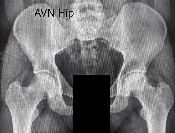 Preoperative X-ray of the pelvis with both hips in anteroposterior view showing AVN of the Left Hip