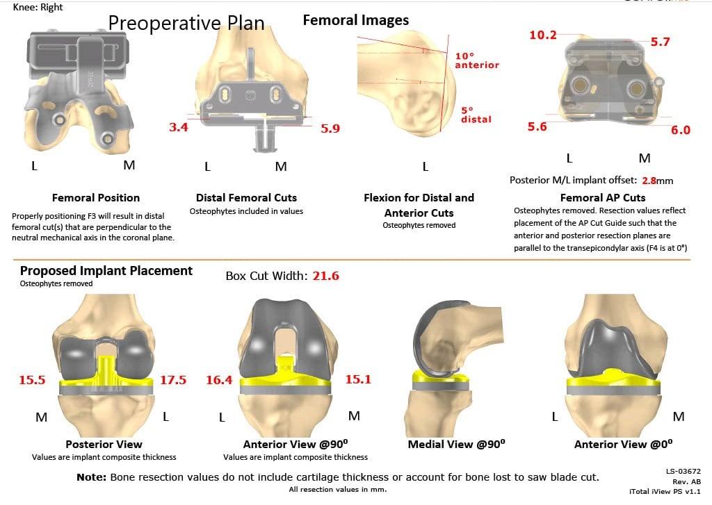 Complete Orthopedics patient specific surgical plan for a Right Custom Knee Replacement in a 59-year-old male - scan 2