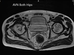 Axial section T2WI showing bilateral AVN of the femoral heads