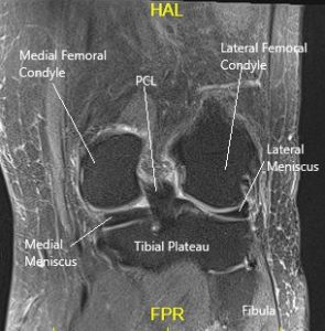 MRI of the knee in the coronal section showing various structures
