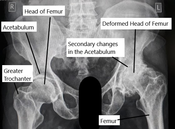 X-ray showing avascular necrosis (AVN) of the hip