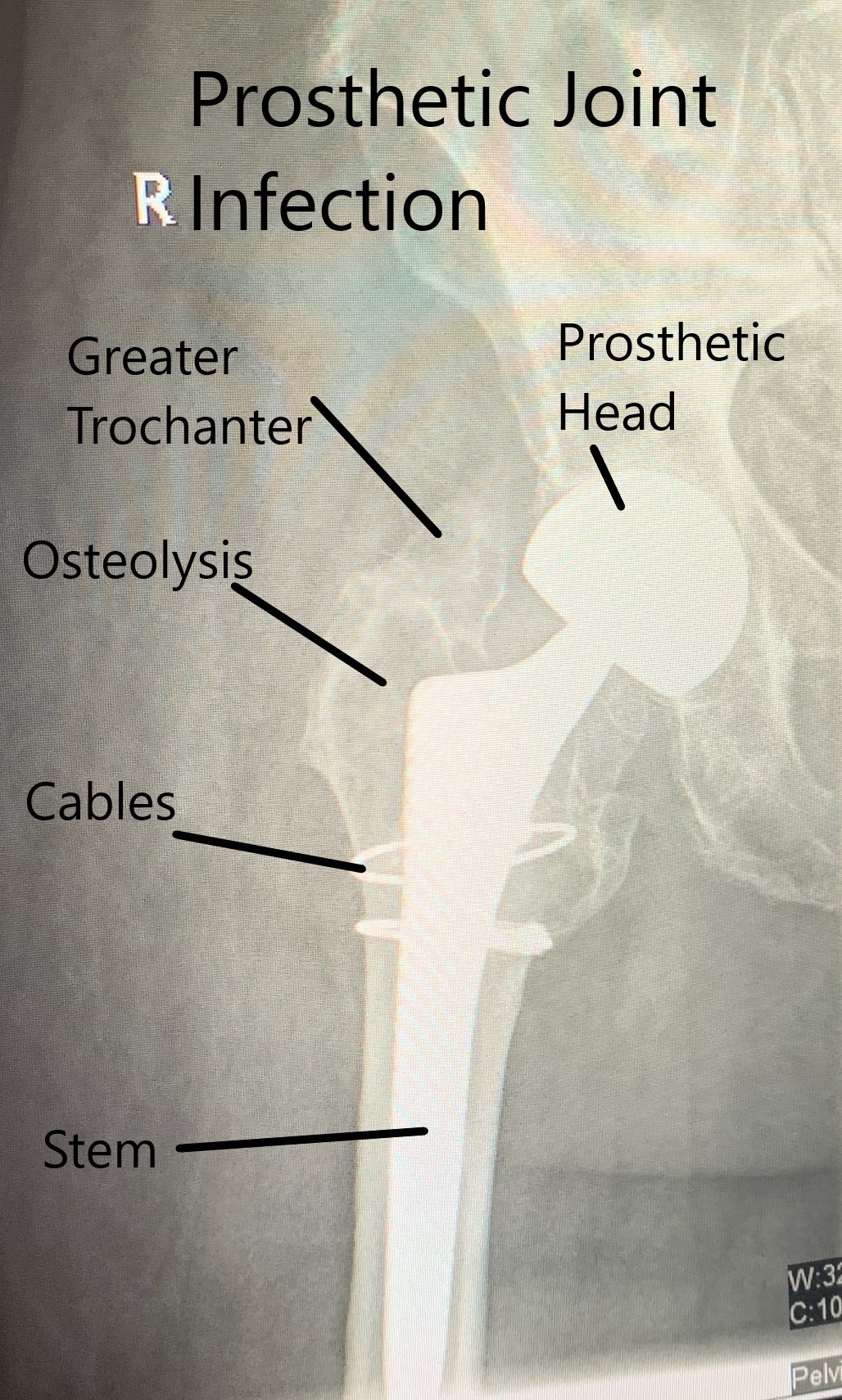 X Ray showing prosthetic joint infection