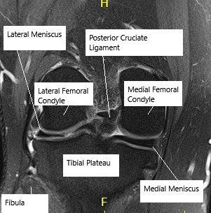 MRI showing knee meniscus.