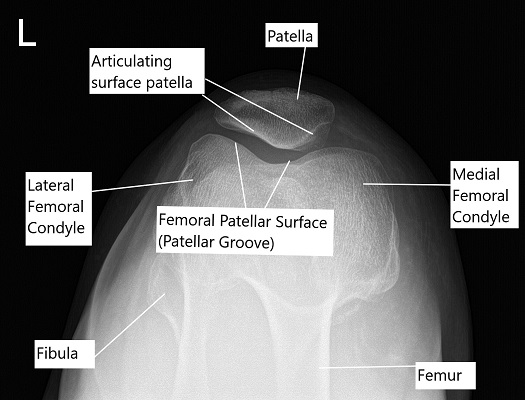 Skyline X-ray view of the patella.