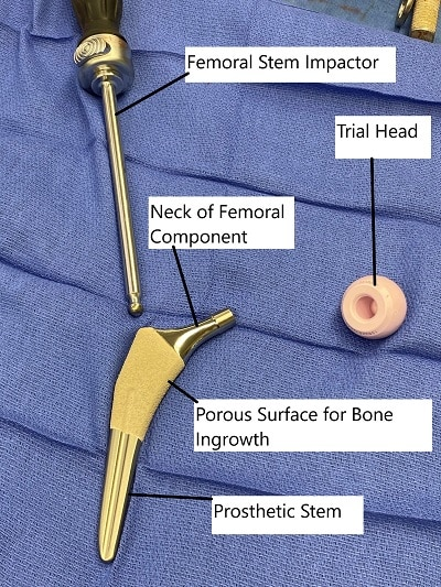 Total Hip Replacement Components.
