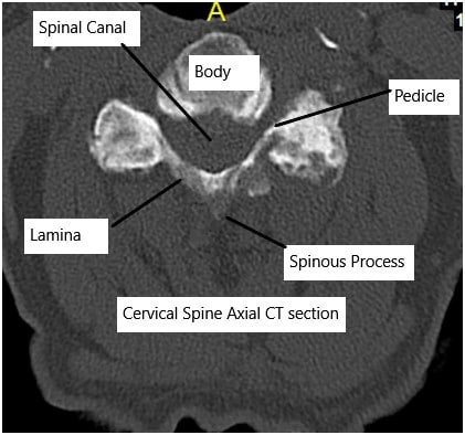 Cervical CT scan showing axial section.