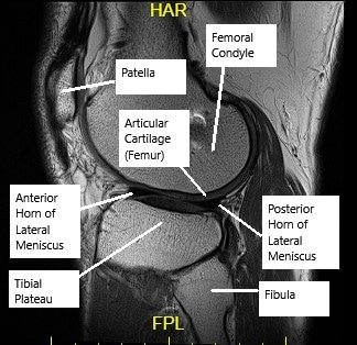 MRI of the knee showing articular cartilage.