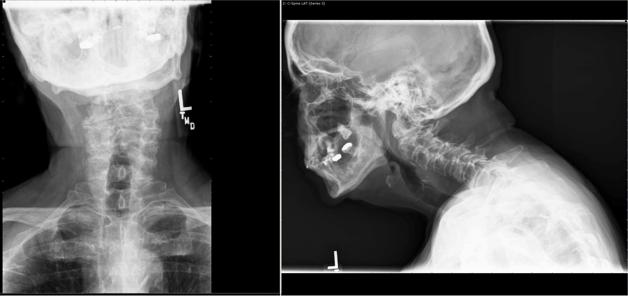 AP and Lateral view of X rays showing a suspected odontoid fracture with instability at C1-2