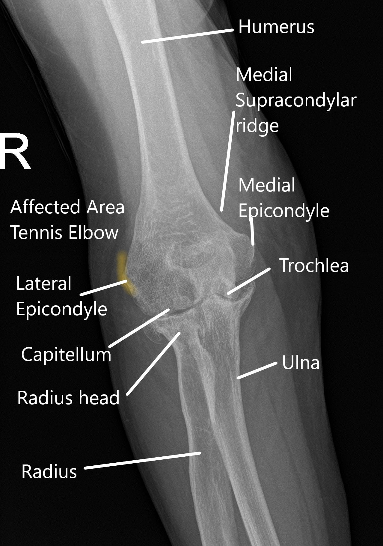X-ray of the elbow in the AP view.