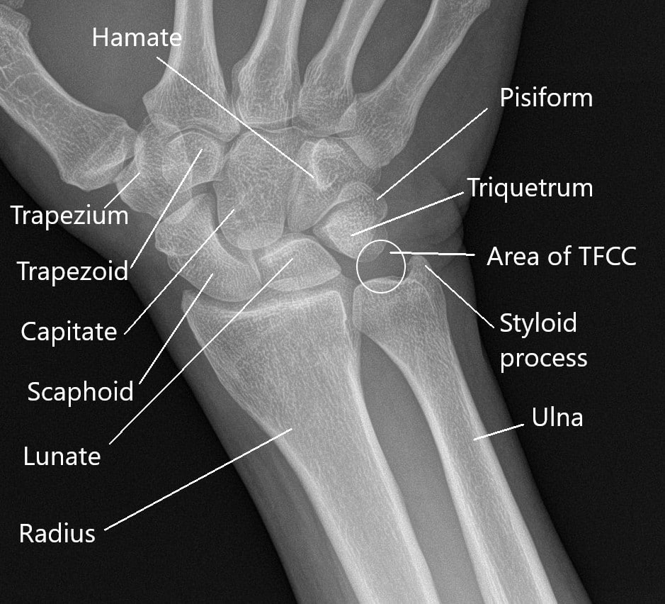 X-ray of the wrist showing anatomy of the wrist.