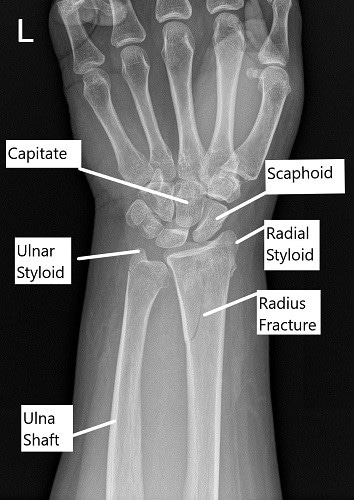 X-ray showing distal radius fracture in AP view.