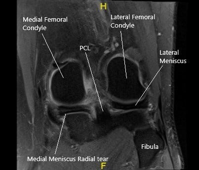 MRI of the left knee in the coronal section showing the torn medial meniscus.