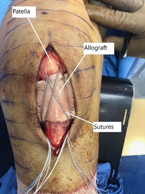 Intraoperative image showing the repaired patellar tendon with overlying allograft.