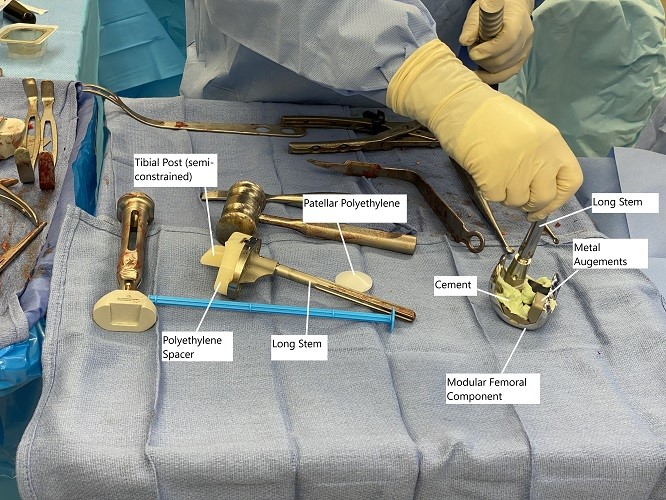 Intraoperative image showing modular knee replacement implants.