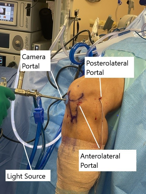 Intraoperative image showing knee arthroscopic ACL reconstruction.