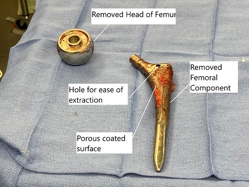 Extracted head of femur and the femoral component during revision surgery.
